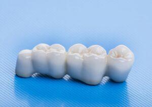 Металлокерамические коронки на зубы